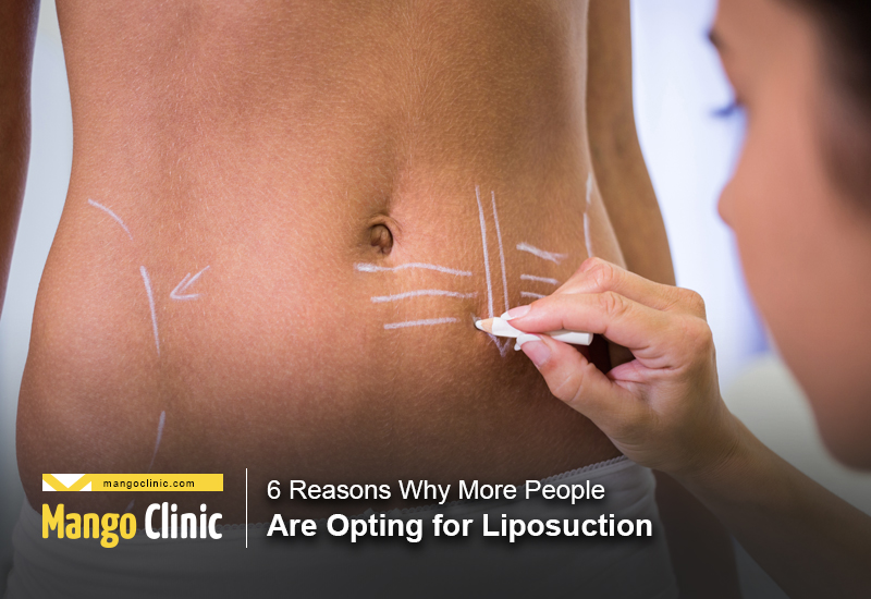Liposuction Effectiveness